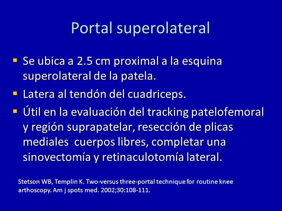 Portal superolateral Se ubica a 2.5 cm proximal a la esquina superolateral de la patela. Se ubica a 2.5 cm proximal a la esquina superolateral de la p