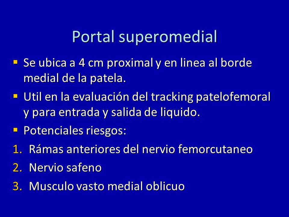 Portal superomedial Se ubica a 4 cm proximal y en linea al borde medial de la patela. Se ubica a 4 cm proximal y en linea al borde medial de la patela