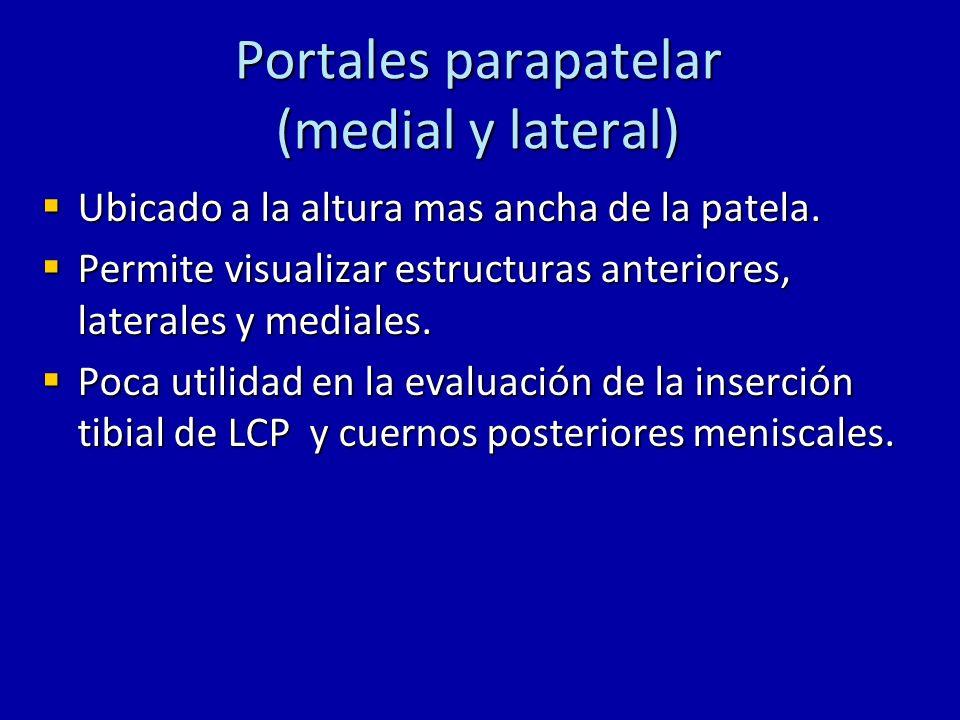 Portales parapatelar (medial y lateral) Ubicado a la altura mas ancha de la patela. Ubicado a la altura mas ancha de la patela. Permite visualizar est