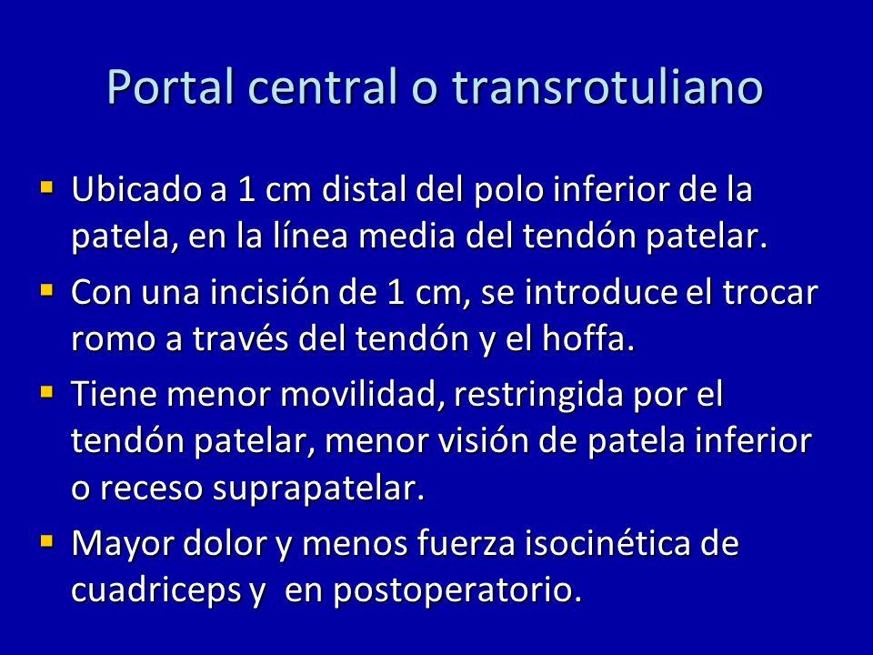 Portal central o transrotuliano Ubicado a 1 cm distal del polo inferior de la patela, en la línea media del tendón patelar. Ubicado a 1 cm distal del