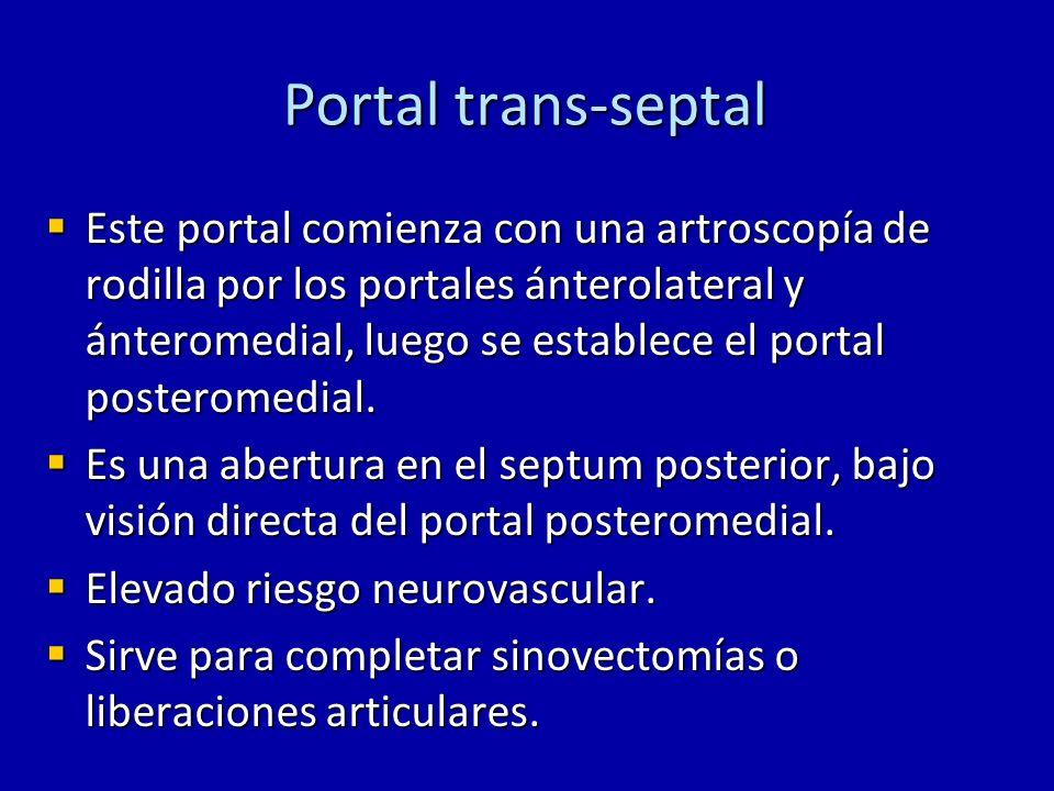 Portal trans-septal Este portal comienza con una artroscopía de rodilla por los portales ánterolateral y ánteromedial, luego se establece el portal po