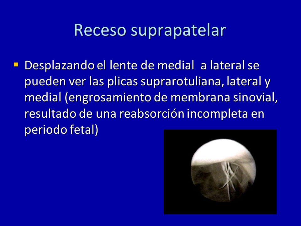 Receso suprapatelar Desplazando el lente de medial a lateral se pueden ver las plicas suprarotuliana, lateral y medial (engrosamiento de membrana sino