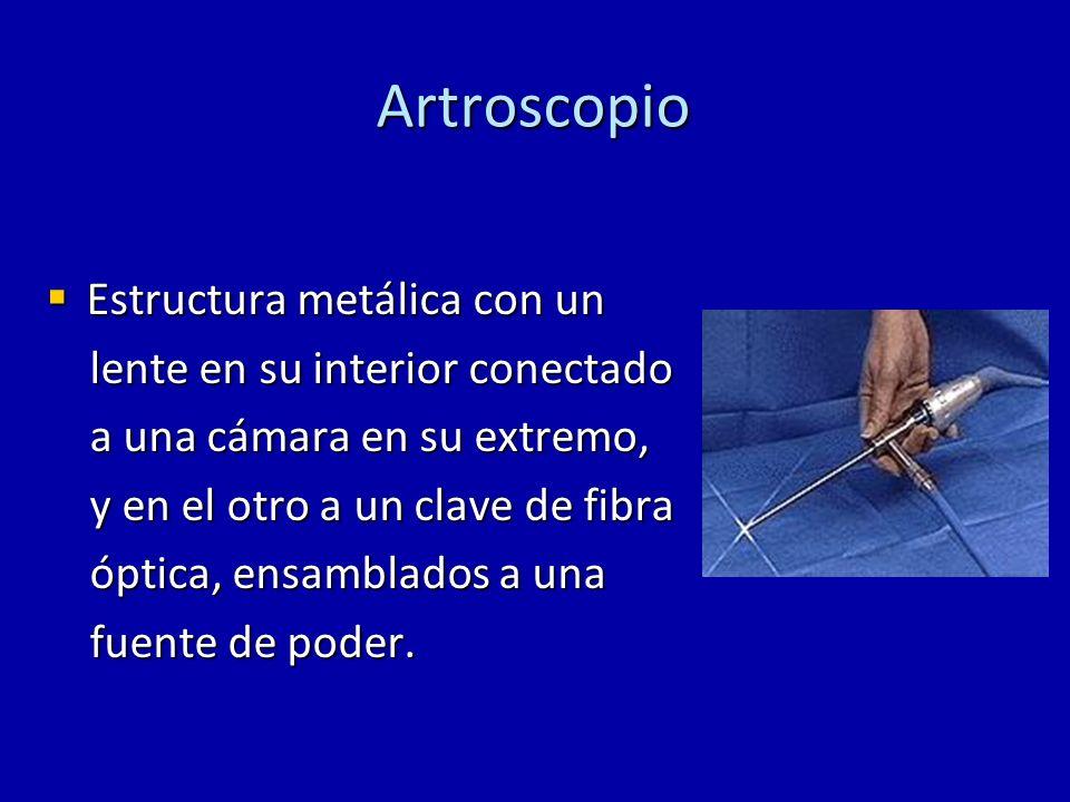 Características ópticas del artroscopio Están dadas por tres propiedades Angulo de inclinación: 0, 15, 30 o 70 grados, los más usados son 30 y 70 grados.