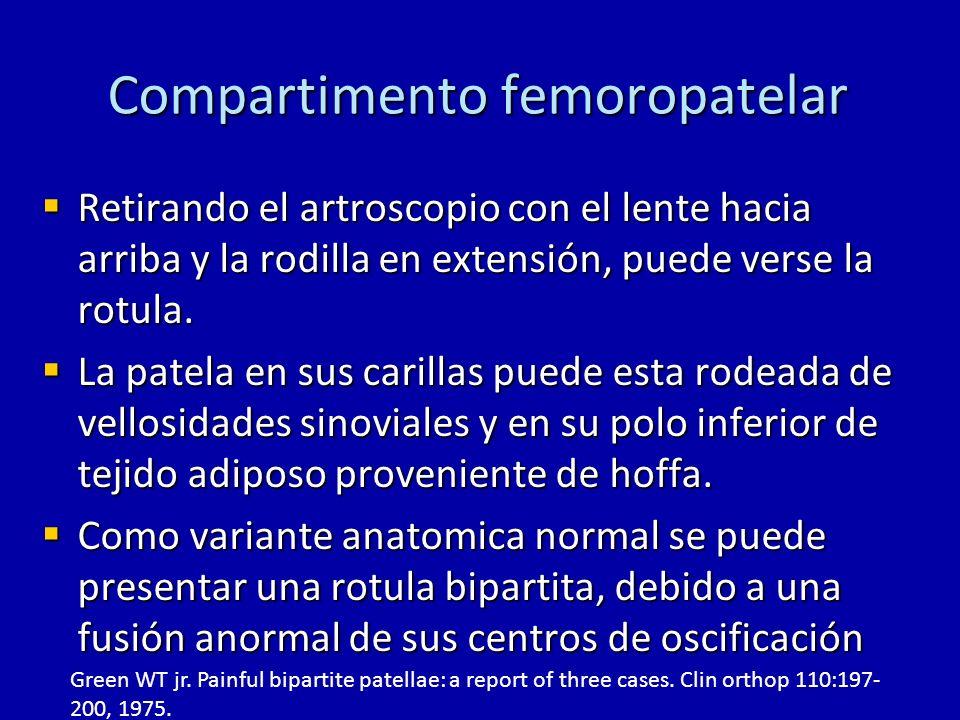 Compartimento femoropatelar Retirando el artroscopio con el lente hacia arriba y la rodilla en extensión, puede verse la rotula. Retirando el artrosco