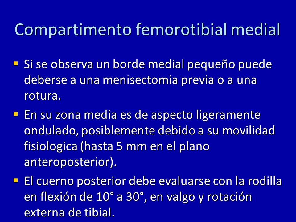Compartimento femorotibial medial Si se observa un borde medial pequeño puede deberse a una menisectomia previa o a una rotura. Si se observa un borde