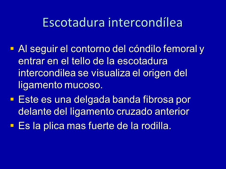 Escotadura intercondílea Al seguir el contorno del cóndilo femoral y entrar en el tello de la escotadura intercondilea se visualiza el origen del liga