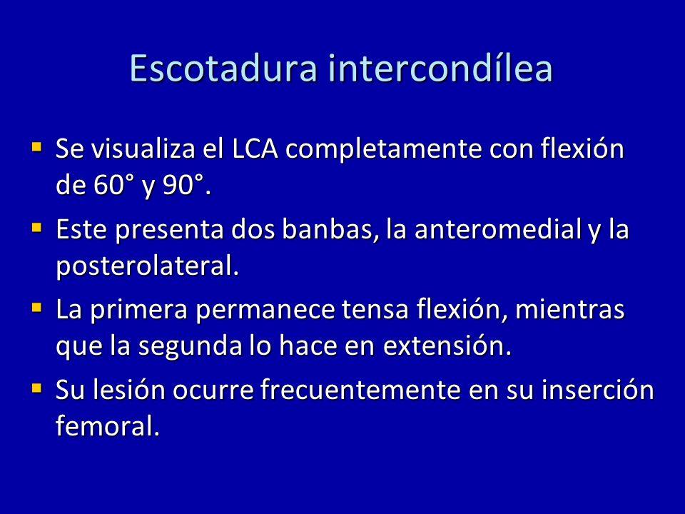 Escotadura intercondílea Se visualiza el LCA completamente con flexión de 60° y 90°. Se visualiza el LCA completamente con flexión de 60° y 90°. Este