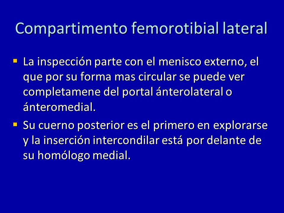 Compartimento femorotibial lateral La inspección parte con el menisco externo, el que por su forma mas circular se puede ver completamene del portal á