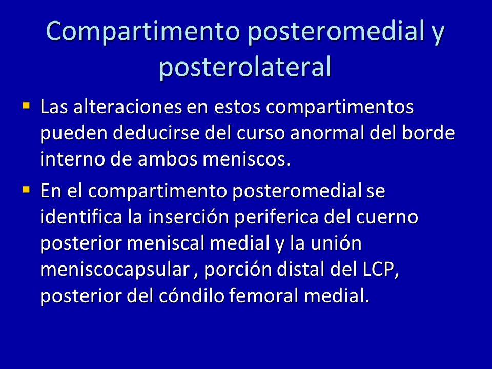 Compartimento posteromedial y posterolateral En el compartimento posterolateral se puede evaluar las siguientes estructuras: En el compartimento posterolateral se puede evaluar las siguientes estructuras: 1.Cuerno posterior del menisco lateral 2.Union menisco-capsular 3.Tendón poplíteo 4.Porción posterior del hiato poplíteo 5.Cóndilo femoral lateral