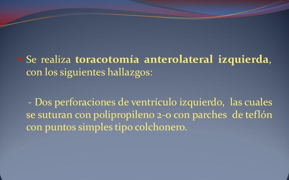 Se realiza toracotomía anterolateral izquierda, con los siguientes hallazgos: - Dos perforaciones de ventrículo izquierdo, las cuales se suturan con p