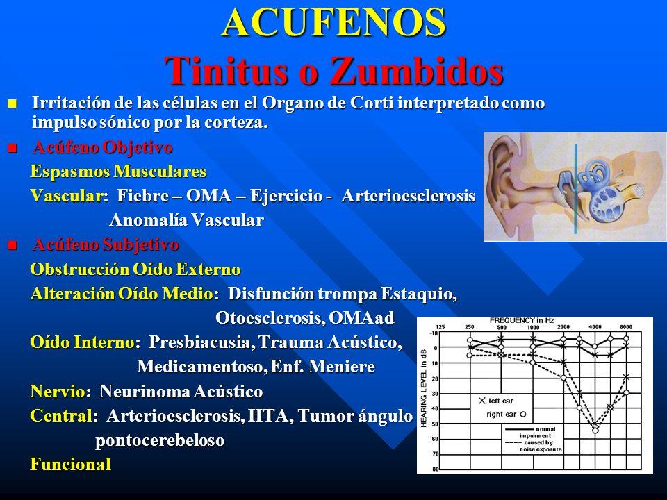ACUFENOS Tinitus o Zumbidos Irritación de las células en el Organo de Corti interpretado como impulso sónico por la corteza. Irritación de las células