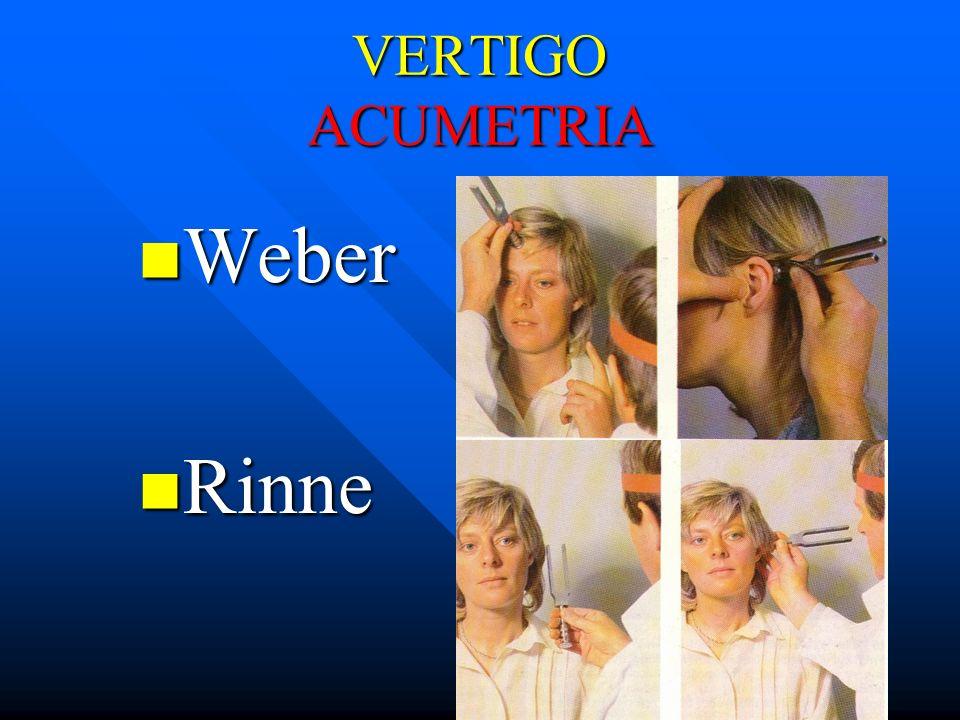 VERTIGO ACUMETRIA Weber Weber Rinne Rinne