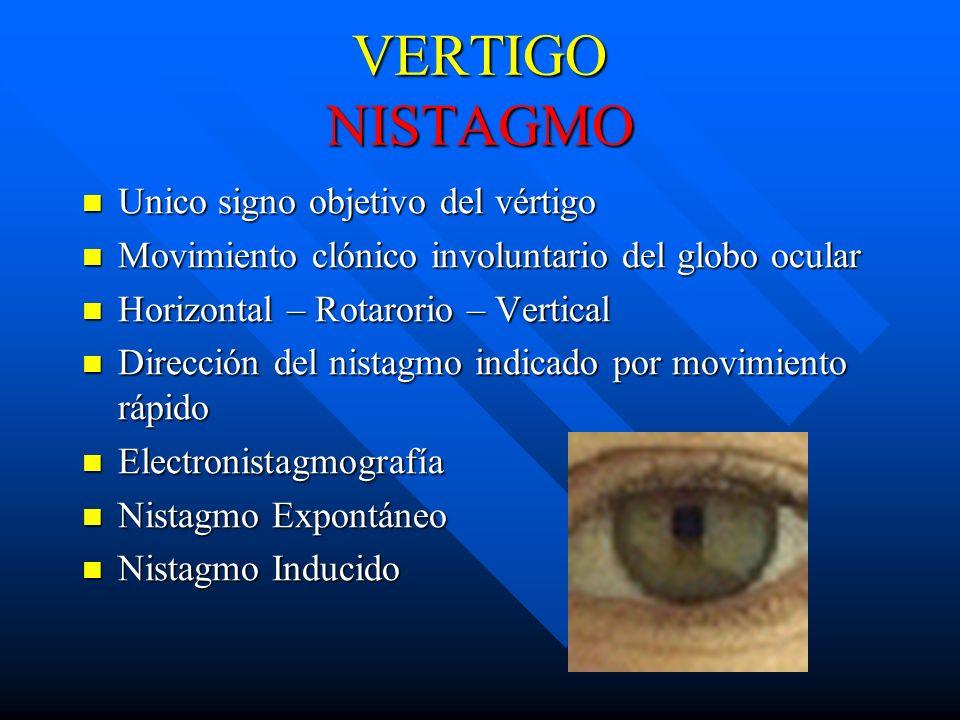 VERTIGO NISTAGMO Unico signo objetivo del vértigo Unico signo objetivo del vértigo Movimiento clónico involuntario del globo ocular Movimiento clónico