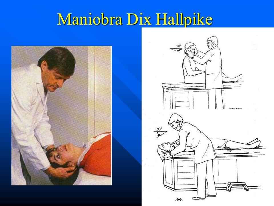 Maniobra Dix Hallpike