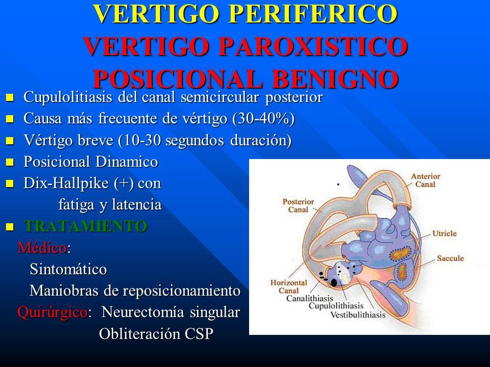 VERTIGO PERIFERICO VERTIGO PAROXISTICO POSICIONAL BENIGNO Cupulolitiasis del canal semicircular posterior Cupulolitiasis del canal semicircular poster