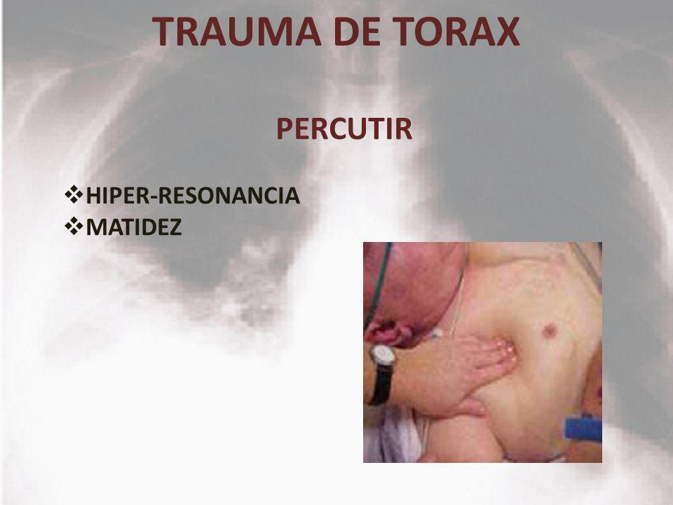 TRAUMA DE TORAX PERCUTIR HIPER-RESONANCIA MATIDEZ