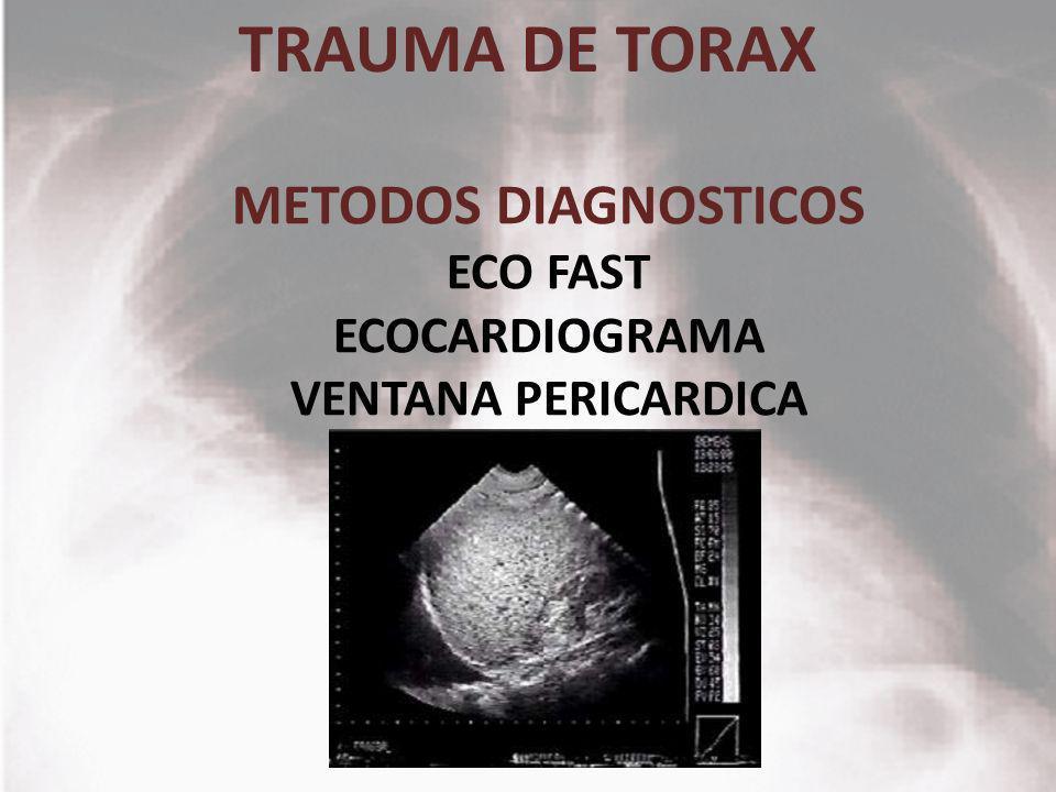 METODOS DIAGNOSTICOS ECO FAST ECOCARDIOGRAMA VENTANA PERICARDICA
