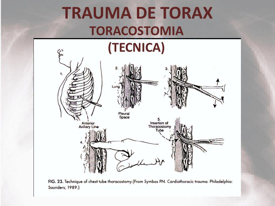 TRAUMA DE TORAX TORACOSTOMIA (TECNICA)