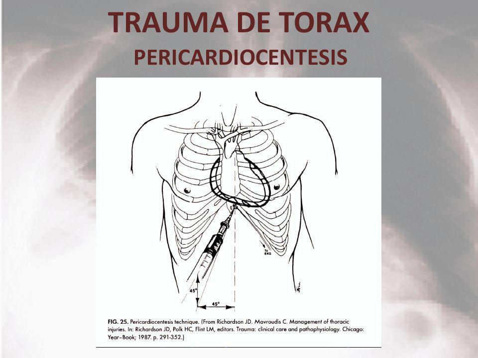TRAUMA DE TORAX PERICARDIOCENTESIS