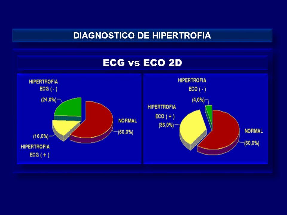 DIAGNOSTICO DE HIPERTROFIA ECG vs ECO 2D