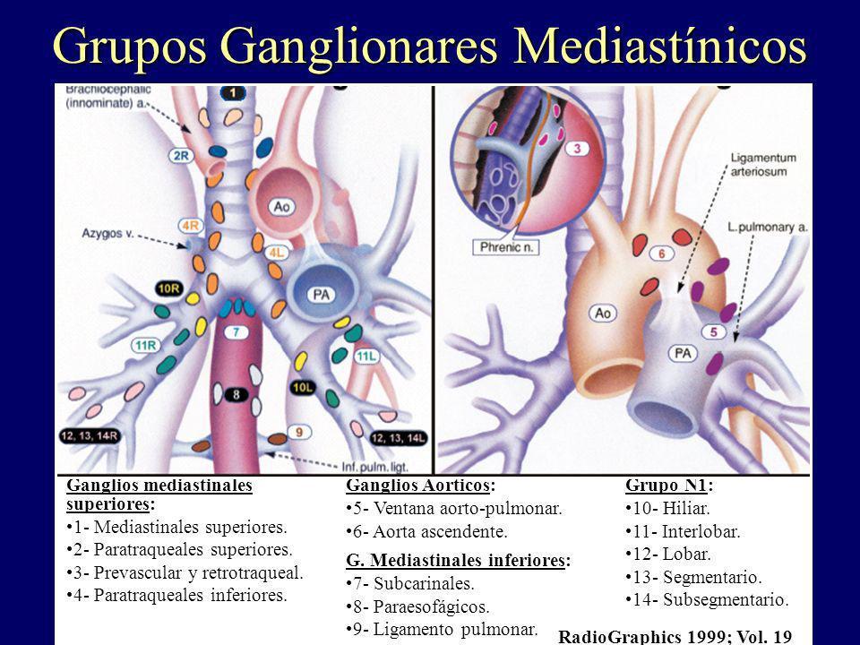 Ganglios mediastinales superiores: 1- Mediastinales superiores. 2- Paratraqueales superiores. 3- Prevascular y retrotraqueal. 4- Paratraqueales inferi