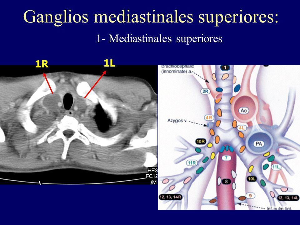 1R 1L Ganglios mediastinales superiores: 1- Mediastinales superiores.