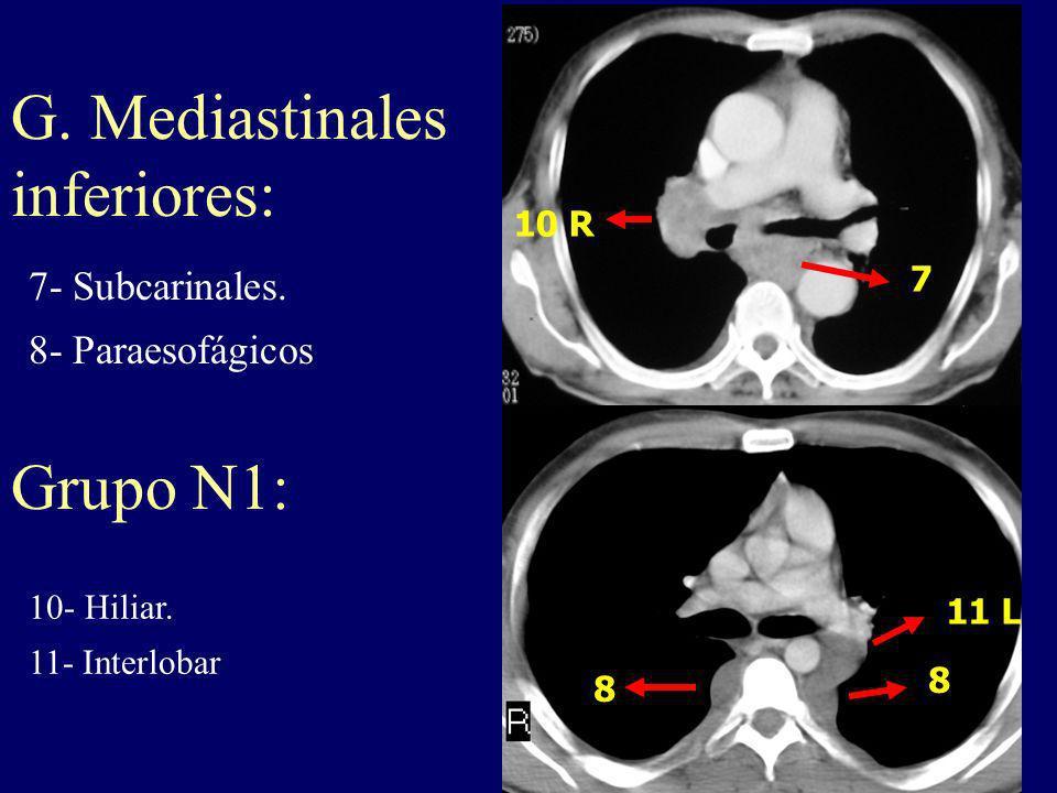 11 L 8 8 10 R 7 7- Subcarinales. 8- Paraesofágicos G. Mediastinales inferiores: 10- Hiliar. 11- Interlobar Grupo N1: