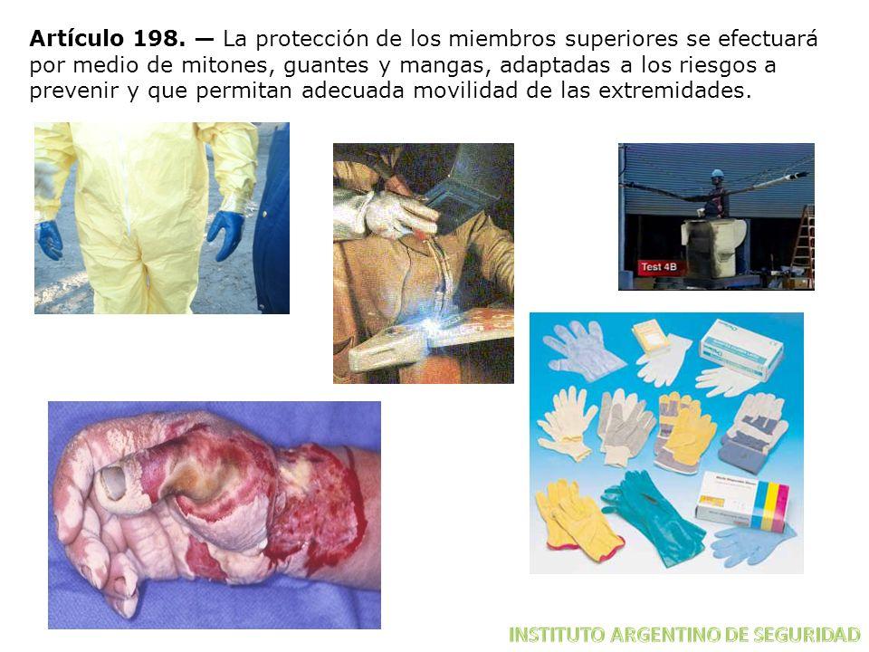 Artículo 198. La protección de los miembros superiores se efectuará por medio de mitones, guantes y mangas, adaptadas a los riesgos a prevenir y que p