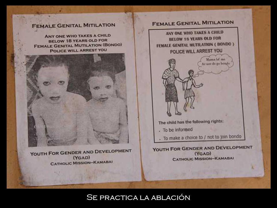 Hay desnutrición y enfermedades que se reflejan, por ejemplo, en la hinchazón de las tripas de los niños.