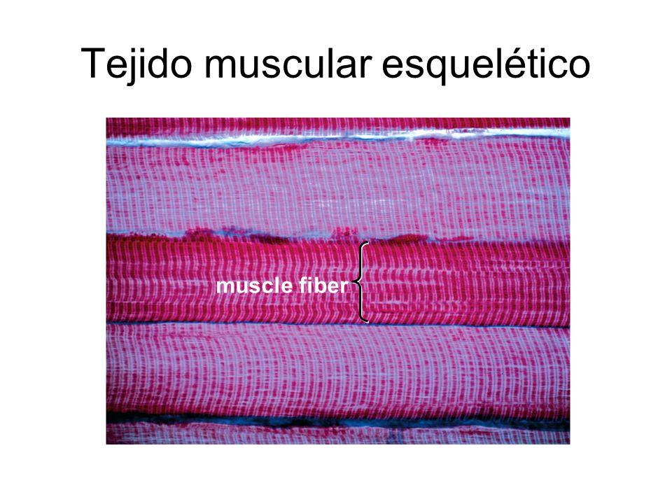 Tejido muscular esquelético muscle fiber