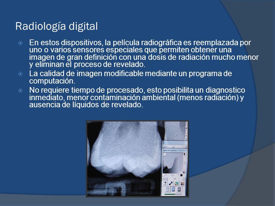 Radiología digital En estos dispositivos, la película radiográfica es reemplazada por uno o varios sensores especiales que permiten obtener una imagen