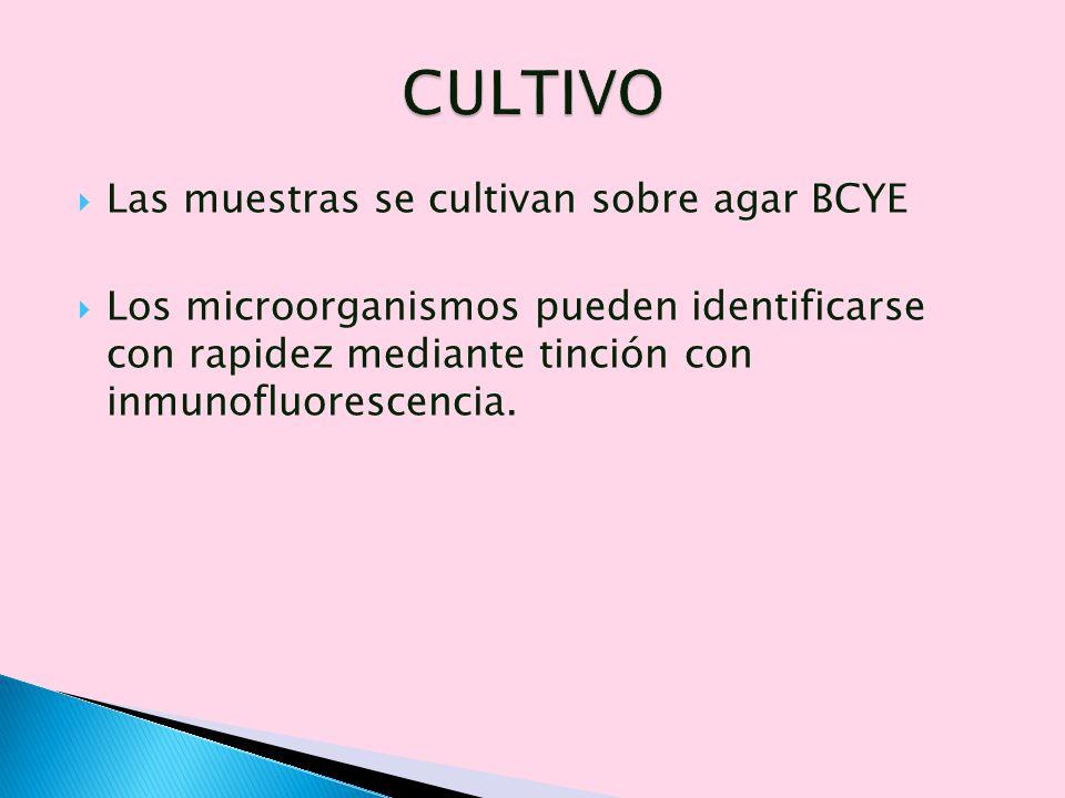 Las muestras se cultivan sobre agar BCYE Los microorganismos pueden identificarse con rapidez mediante tinción con inmunofluorescencia.