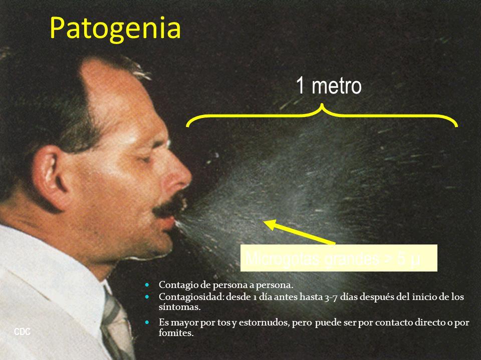 Microgotas grandes > 5 µ CDC Patogenia Contagio de persona a persona. Contagiosidad: desde 1 día antes hasta 3-7 días después del inicio de los síntom