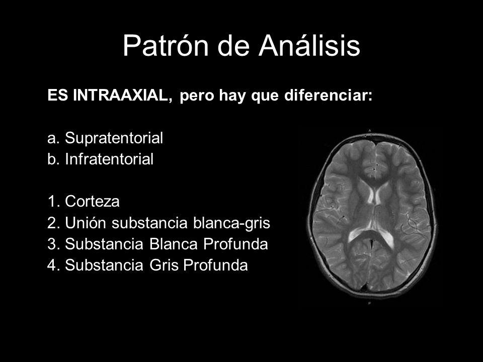 Patrón de Análisis ES INTRAAXIAL, pero hay que diferenciar: a. Supratentorial b. Infratentorial 1. Corteza 2. Unión substancia blanca-gris 3. Substanc