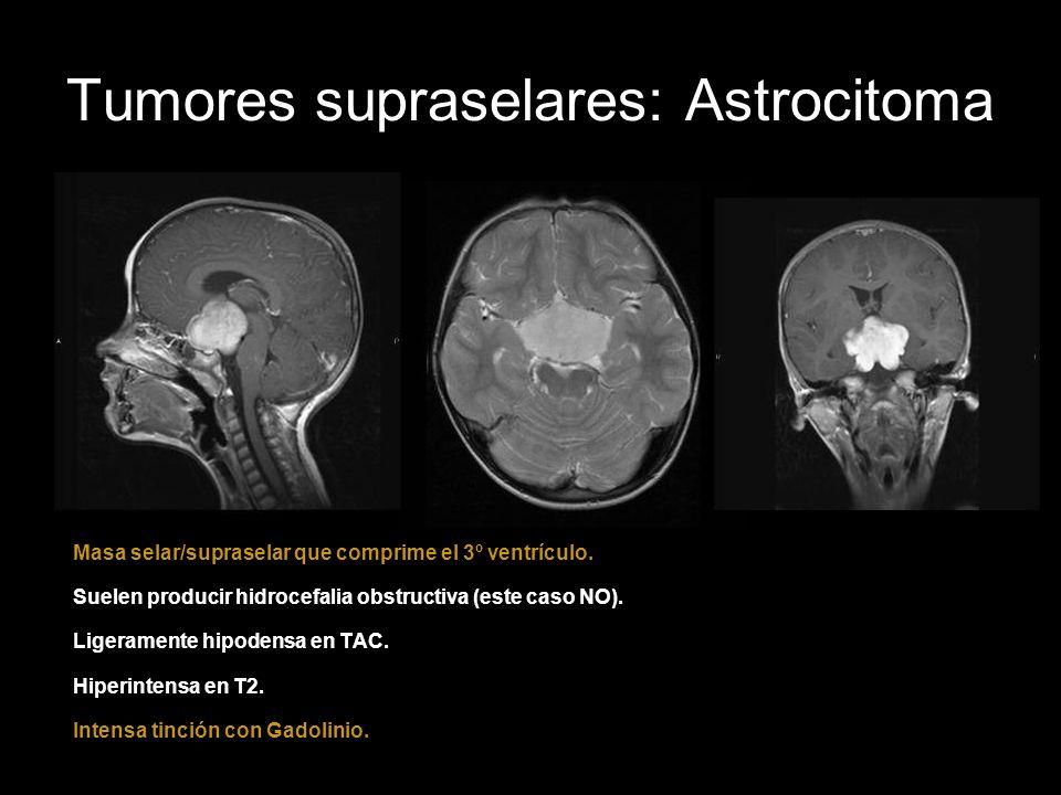 Tumores supraselares: Astrocitoma Masa selar/supraselar que comprime el 3º ventrículo. Suelen producir hidrocefalia obstructiva (este caso NO). Ligera