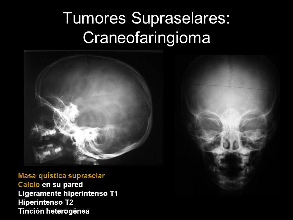 Tumores Supraselares: Craneofaringioma Masa quística supraselar Calcio en su pared Ligeramente hiperintenso T1 Hiperintenso T2 Tinción heterogénea