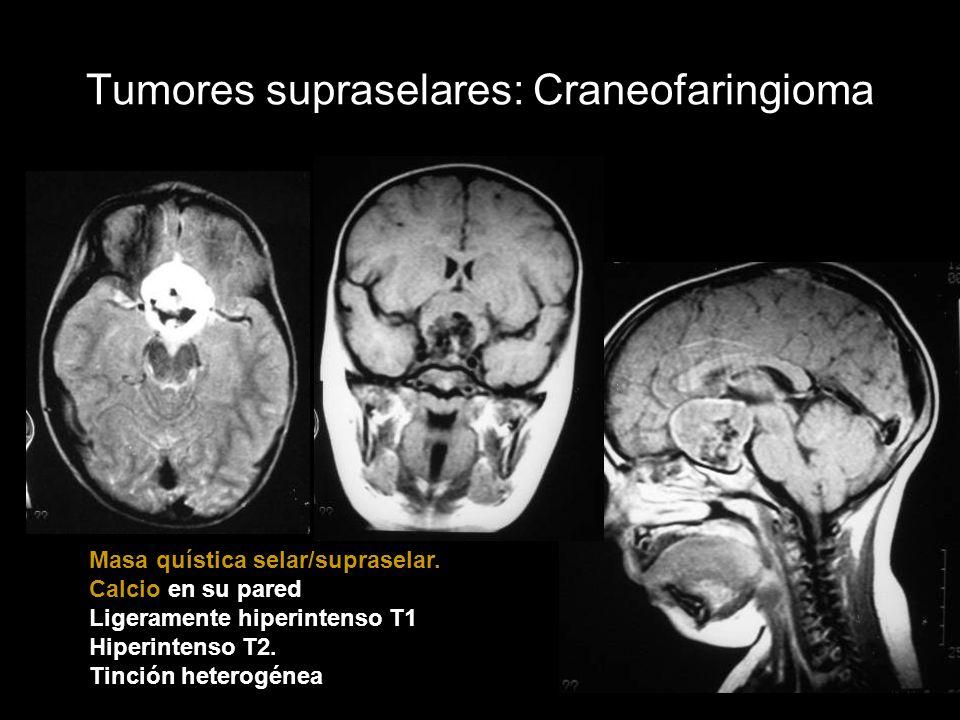 Tumores supraselares: Craneofaringioma Masa quística selar/supraselar. Calcio en su pared Ligeramente hiperintenso T1 Hiperintenso T2. Tinción heterog