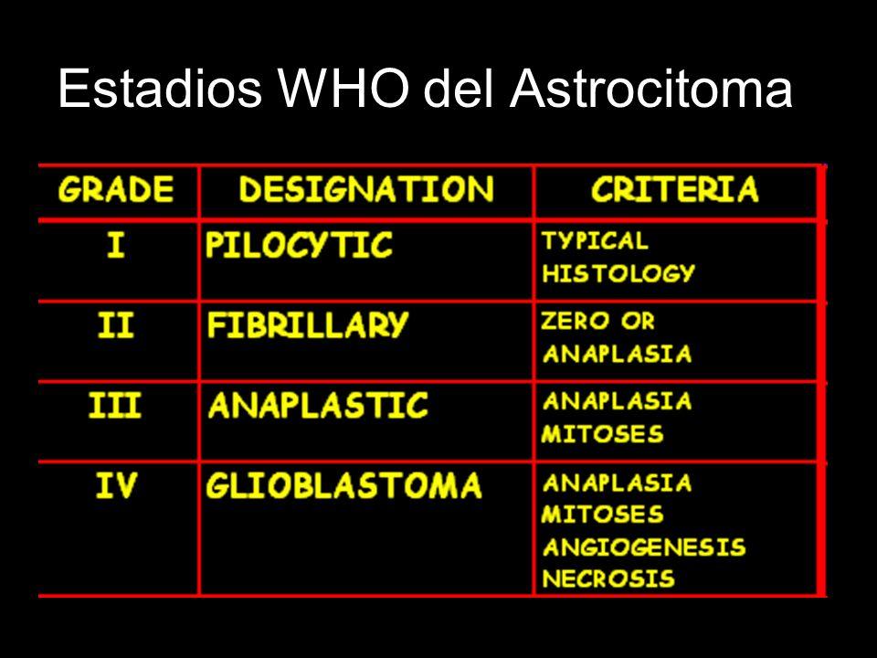 Estadios WHO del Astrocitoma