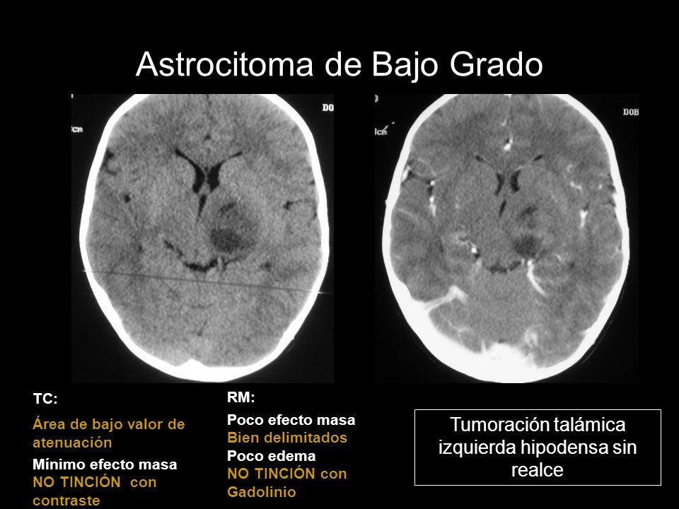 Astrocitoma de Bajo Grado TC: Área de bajo valor de atenuación Mínimo efecto masa NO TINCIÓN con contraste Tumoración talámica izquierda hipodensa sin