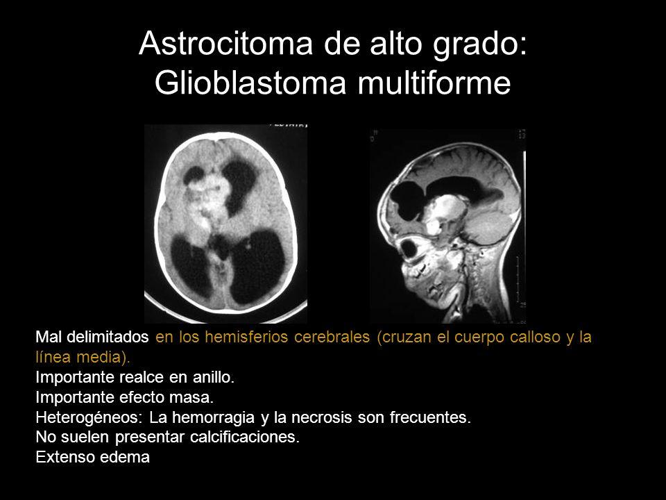 Astrocitoma de alto grado: Glioblastoma multiforme Mal delimitados en los hemisferios cerebrales (cruzan el cuerpo calloso y la línea media). Importan