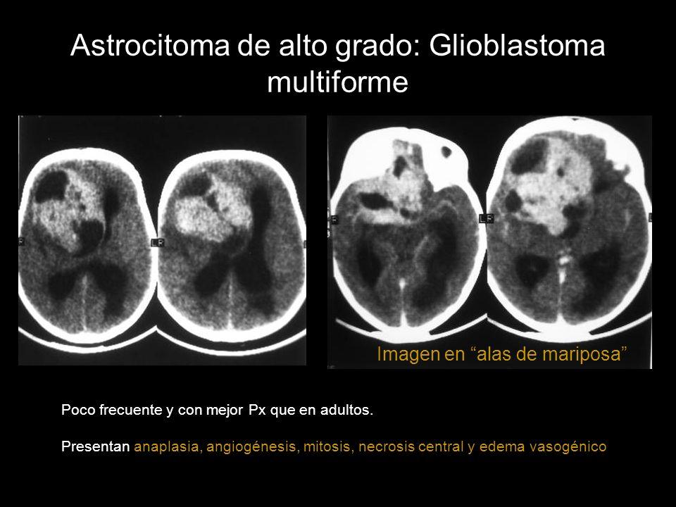 Astrocitoma de alto grado: Glioblastoma multiforme Poco frecuente y con mejor Px que en adultos. Presentan anaplasia, angiogénesis, mitosis, necrosis