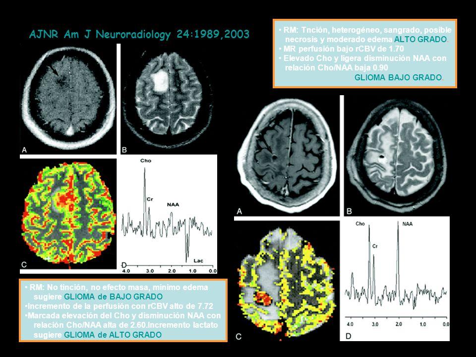 AJNR Am J Neuroradiology 24:1989,2003 GN RM: No tinción, no efecto masa, mínimo edema sugiere GLIOMA de BAJO GRADO Incremento de la perfusión con rCBV