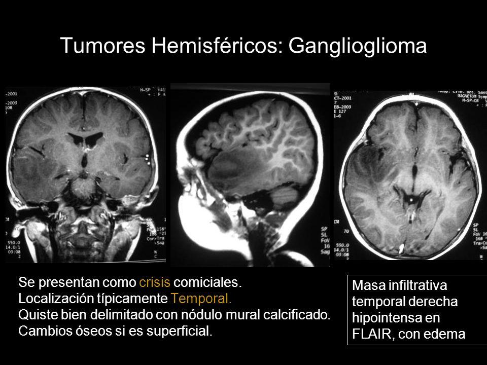 Tumores Hemisféricos: Ganglioglioma Se presentan como crisis comiciales. Localización típicamente Temporal. Quiste bien delimitado con nódulo mural ca