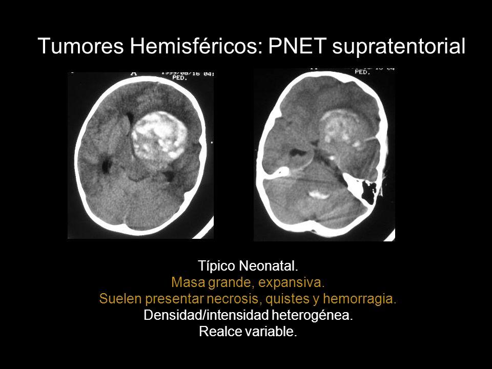 Tumores Hemisféricos: PNET supratentorial Típico Neonatal. Masa grande, expansiva. Suelen presentar necrosis, quistes y hemorragia. Densidad/intensida