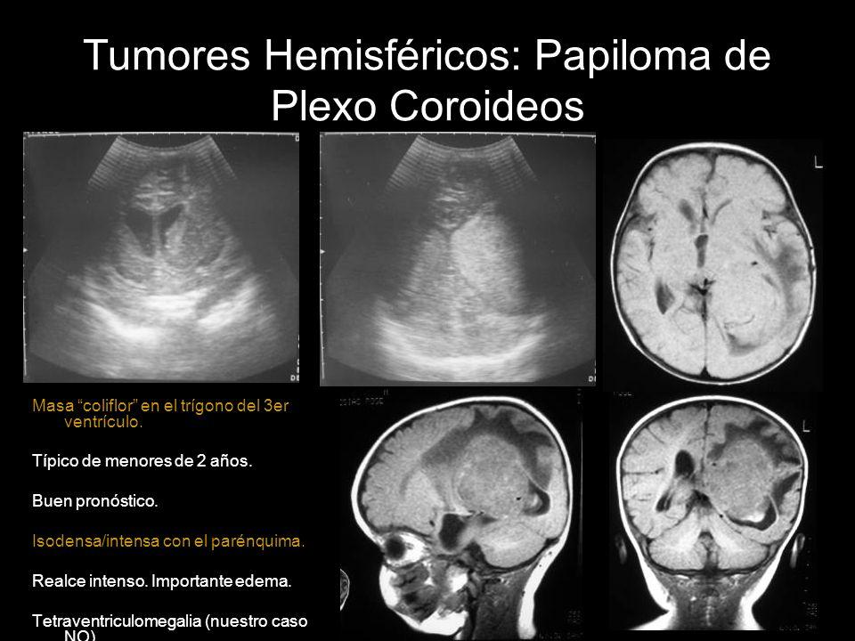 Tumores Hemisféricos: Papiloma de Plexo Coroideos Masa coliflor en el trígono del 3er ventrículo. Típico de menores de 2 años. Buen pronóstico. Isoden