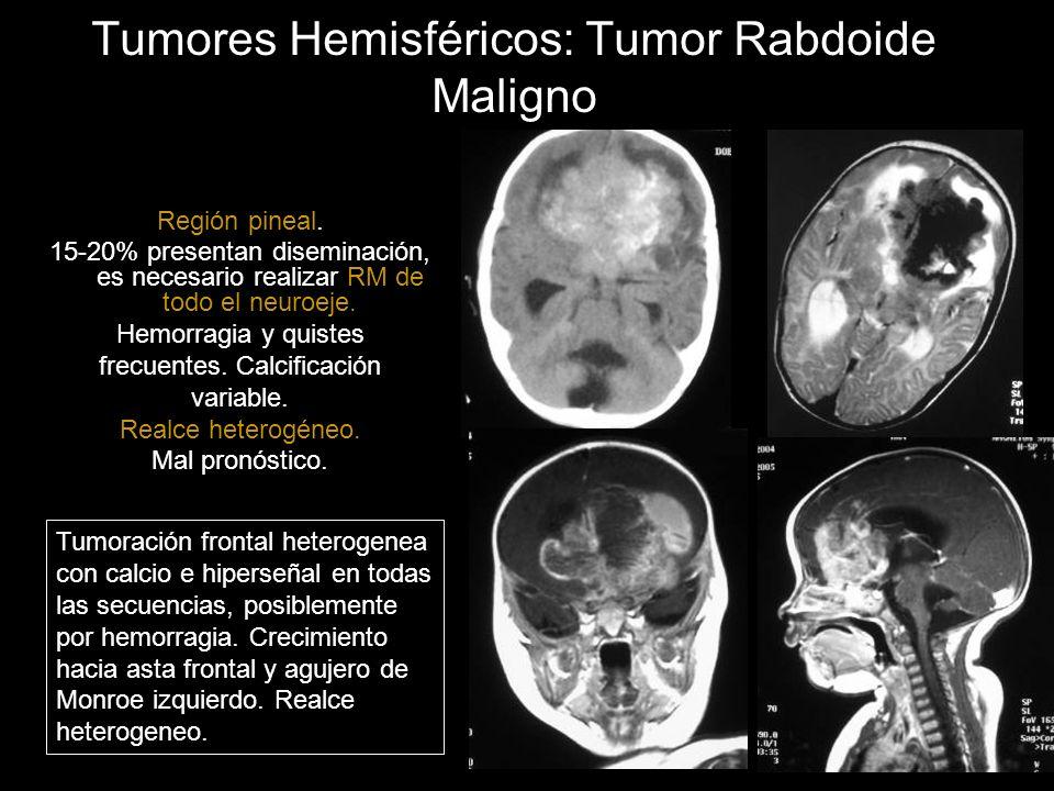 Tumores Hemisféricos: Tumor Rabdoide Maligno Región pineal. 15-20% presentan diseminación, es necesario realizar RM de todo el neuroeje. Hemorragia y