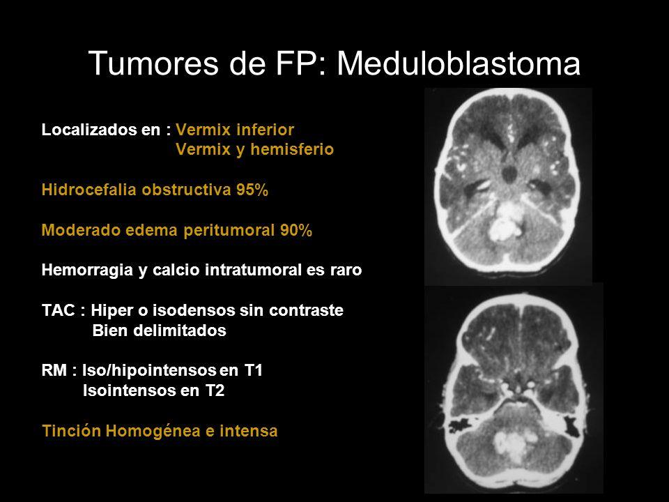 Tumores de FP: Meduloblastoma Localizados en : Vermix inferior Vermix y hemisferio Hidrocefalia obstructiva 95% Moderado edema peritumoral 90% Hemorra