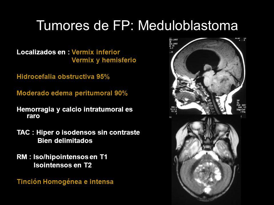 Localizados en : Vermix inferior Vermix y hemisferio Hidrocefalia obstructiva 95% Moderado edema peritumoral 90% Hemorragia y calcio intratumoral es r