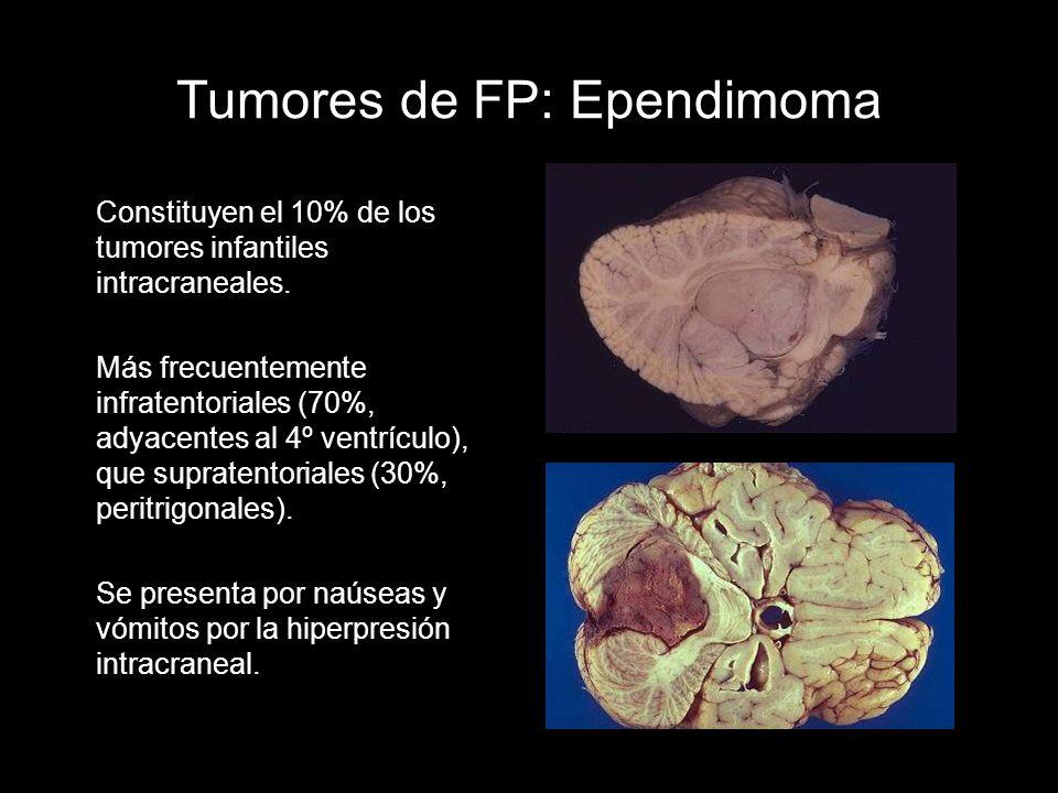 Tumores de FP: Ependimoma Constituyen el 10% de los tumores infantiles intracraneales. Más frecuentemente infratentoriales (70%, adyacentes al 4º vent
