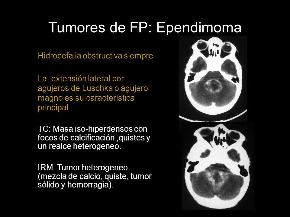 Tumores de FP: Ependimoma Hidrocefalia obstructiva siempre La extensión lateral por agujeros de Luschka o agujero magno es su característica principal